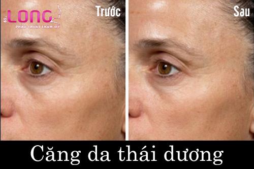 cang-da-thai-duong-co-dau-khong