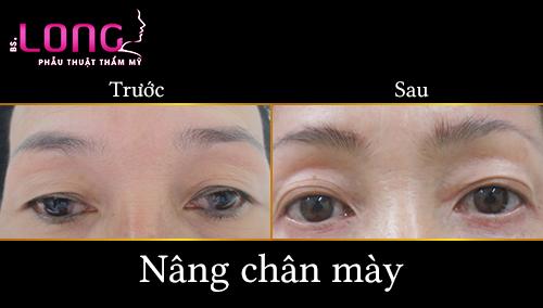nang-chan-may-co-duy-tri-ket-qua-vinh-vien-khong-1