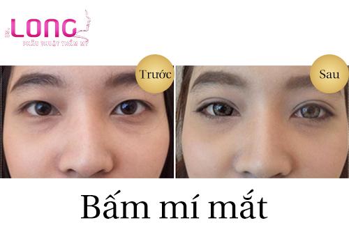 bam-mat-2-mi-han-quoc-co-dat-khong-1