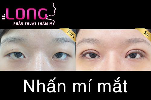 bam-mi-mat-sau-bao-lau-thi-lanh-han-1
