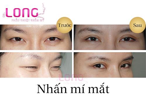 nhan-mat-2-mi-dep-khong-sung-bam-1