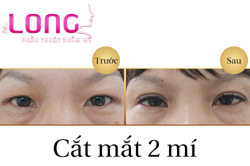 cat-mat-2-mi-han-quoc-giup-tao-mat-2-mi-tu-nhien-1