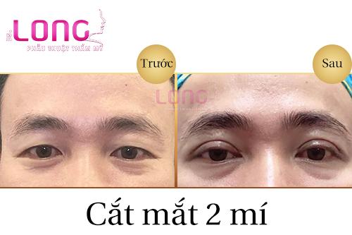 phau-thuat-cat-mi-mat-cho-nam-gioi-1