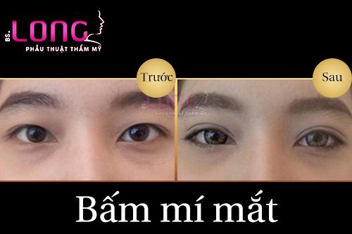bam-mi-mat-khong-phau-thuat-giu-duoc-bao-lau-1