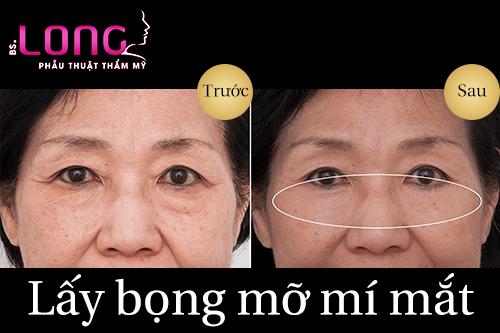 lay-bong-mo-mat-gia-bao-nhieu-tien-2