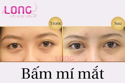 tham-my-bam-mi-mat-co-dau-khong-1