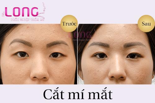 cat-mi-mat-xong-nen-kieng-an-mon-gi