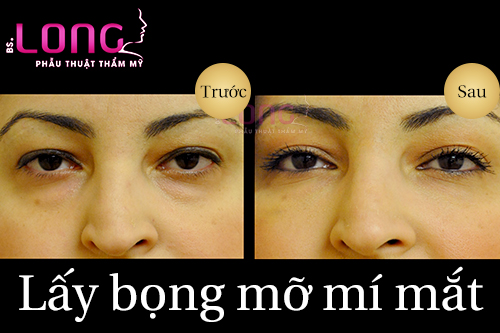 doi-tuong-nen-lay-bong-mo-mi-mat-1