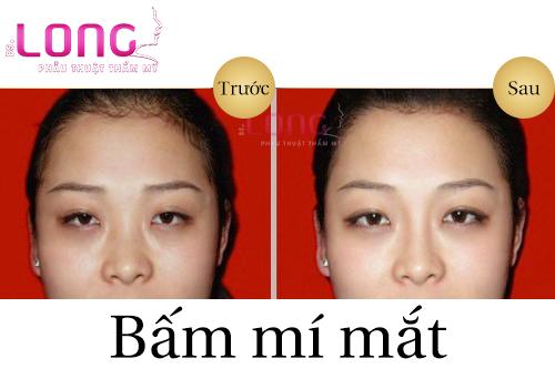 nguoi-can-thi-co-bam-mi-mat-duoc-khong-1