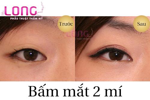 bam-mat-2-mi-duy-tri-duoc-bao-lau-1
