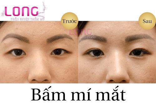 quy-trinh-bam-mat-2-mi-thuc-hien-nhu-the-nao-1