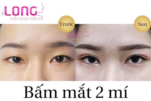 ai-nen-thuc-hien-bam-mat-2-mi-1