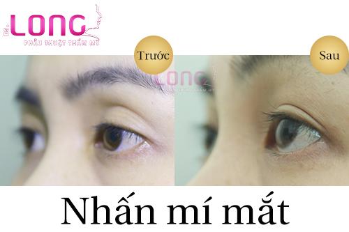 tao-mat-2-mi-khong-phau-thuat-bang-nhan-mi-2