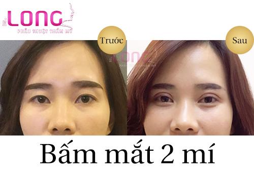 nguoi-bi-benh-li-ve-mat-co-bam-mat-2-mi-duoc-khong-1