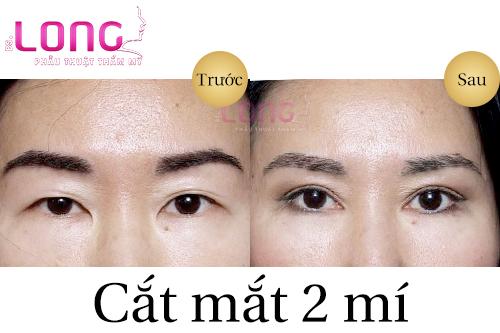 cat-mat-2-mi-bao-lau-thi-het-seo-1