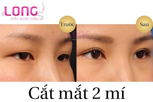 vi-sao-nhieu-nguoi-lua-chon-cat-mat-2-mi-1