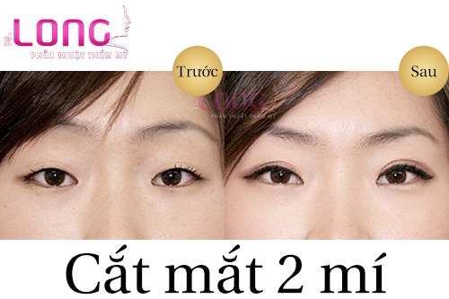 cat-mat-2-mi-cho-nguoi-mat-xech-co-doi-tuong-duoc-khong-1