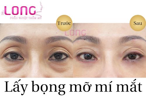 lay-bong-mo-mat-co-lay-bong-mo-mi-duoi-duoc-khong-1
