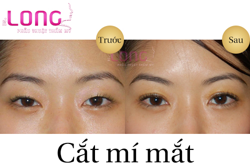 o-dau-cat-mi-mat-dep-tai-tphcm-1