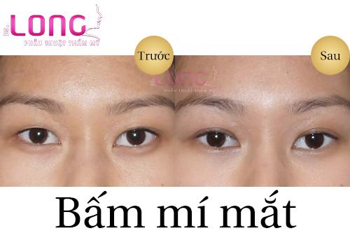 bam-mi-mat-khong-de-lai-seo-phu-thuoc-yeu-to-nao-1