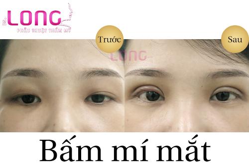 bam-mat-2-mi-co-anh-huong-den-thi-luc-khong-1