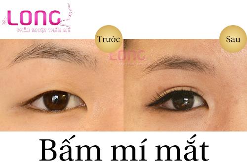bam-mat-2-mi-co-can-kieng-an-gi-de-nhanh-hoi-phuc-khong-1