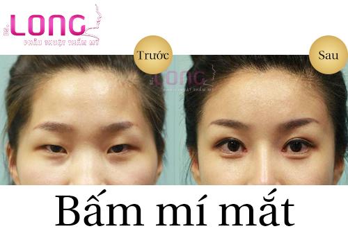bam-mi-mat-khong-phau-thuat-co-can-kieng-an-gi-khong-1