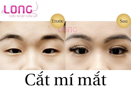 cat-mat-2-mi-plasma-la-gi-1