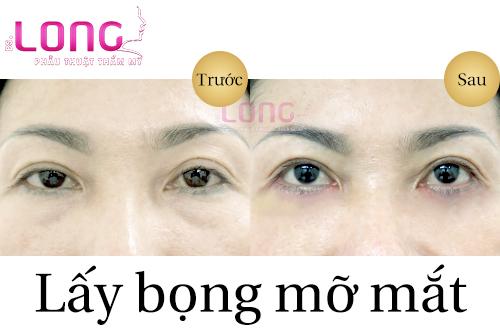 huong-dan-cham-soc-sau-khi-lay-bong-mo-mat-duoi-1