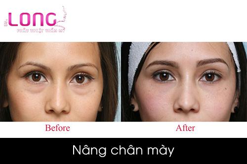 nang-chan-may-co-vinh-vien-khong-1