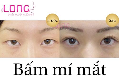 bam-mi-mat-co-danh-cho-nguoi-can-thi-khong-1