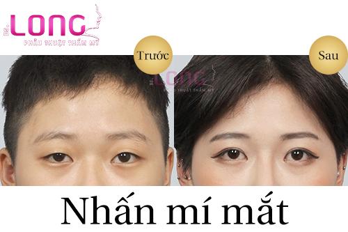 sau-nhan-mi-1-thang-chua-het-sung-co-bi-sao-khong-1