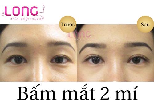 bam-mat-2-mi-han-quoc-dep-tu-nhien-1