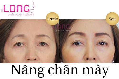 phau-thuat-nang-chan-may-co-phuc-tap-khong-1